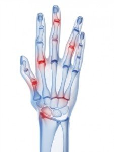 rheumatology_URPG_web_site_hand_x_ray